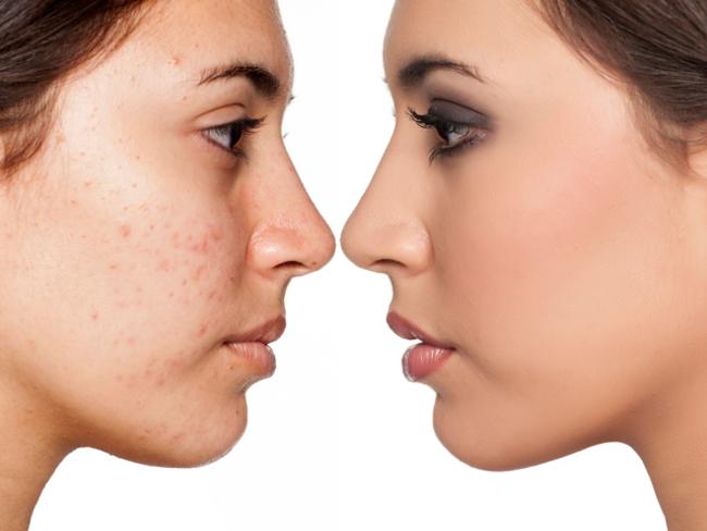 Acne - a major skin problem