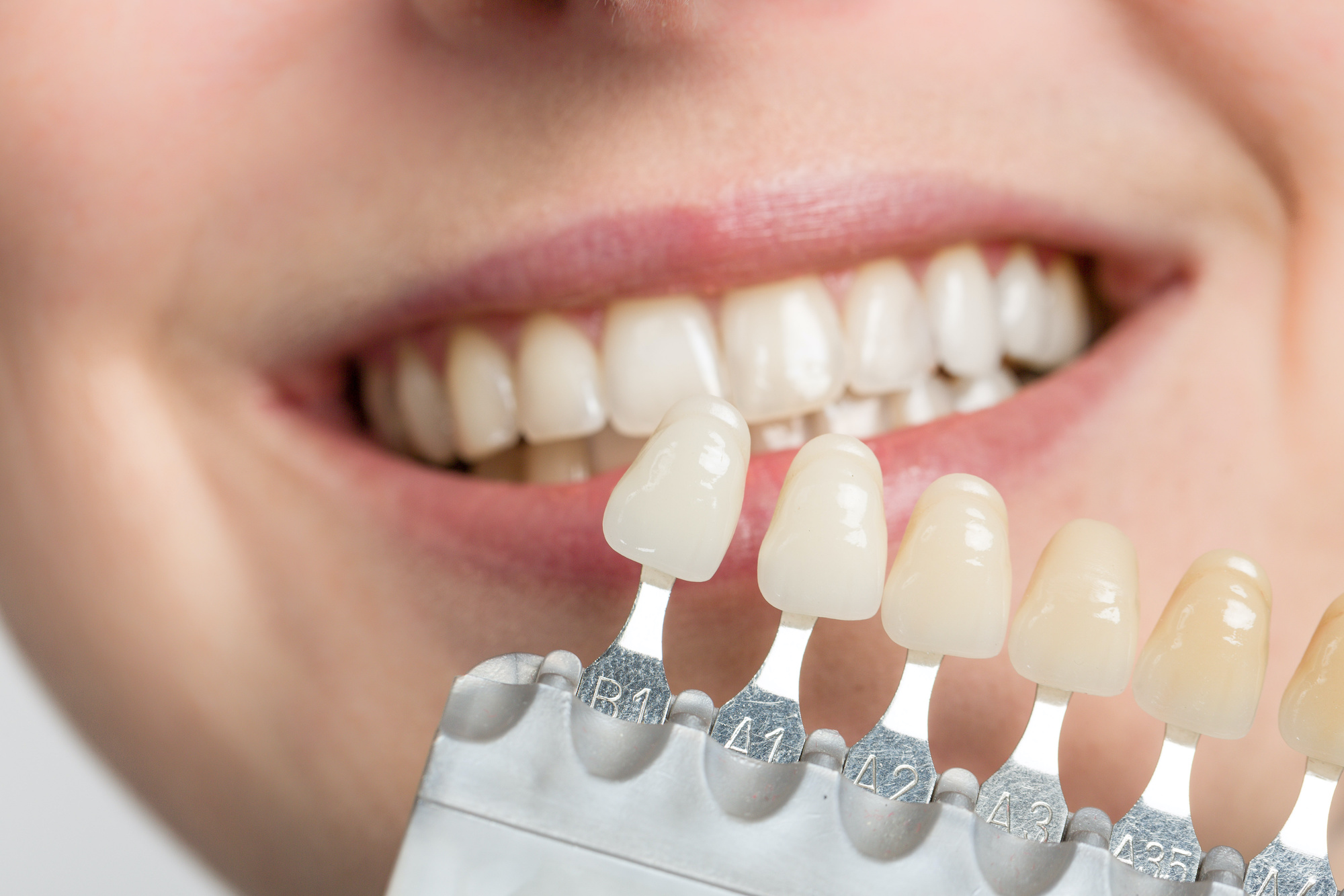 Why Are Veneers Important For Your Teeth?